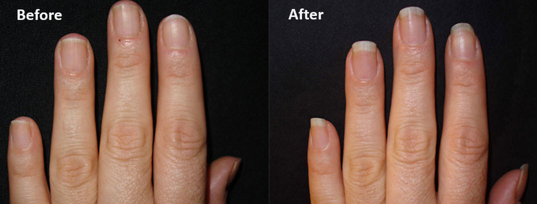 Low Keratin with low msm can lead to nail issues too