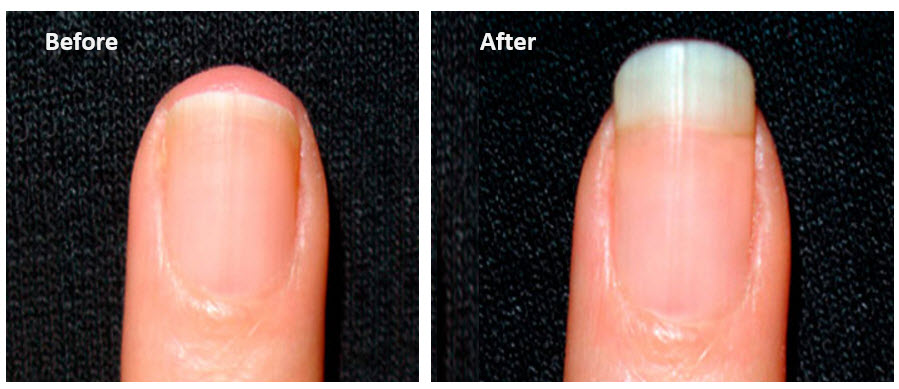 more keratin for hair and nails with MSM