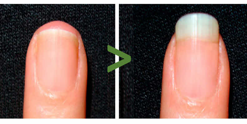 MSM impacts on hair and nails after weeks of use