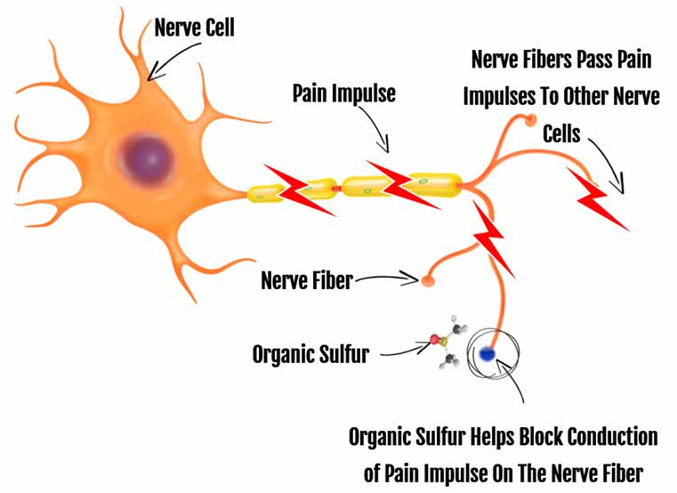 How Organic Sulfur / MSM Helps Promote Pain Relief