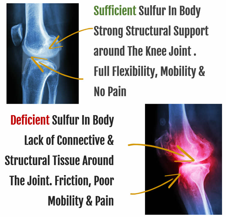How Organic Sulfur Helps Joints