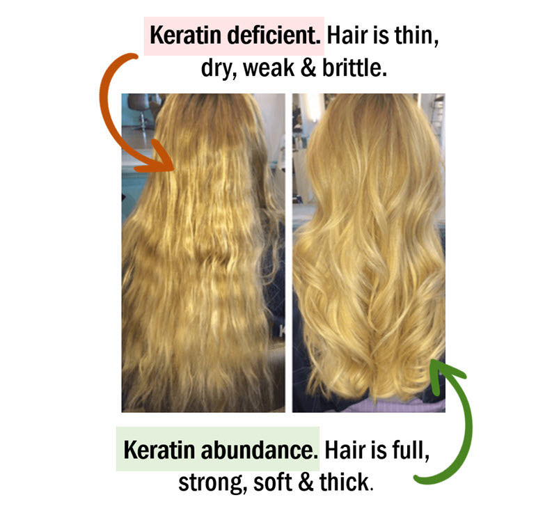 Abundant MSM leads to better keratin / hair follicle production