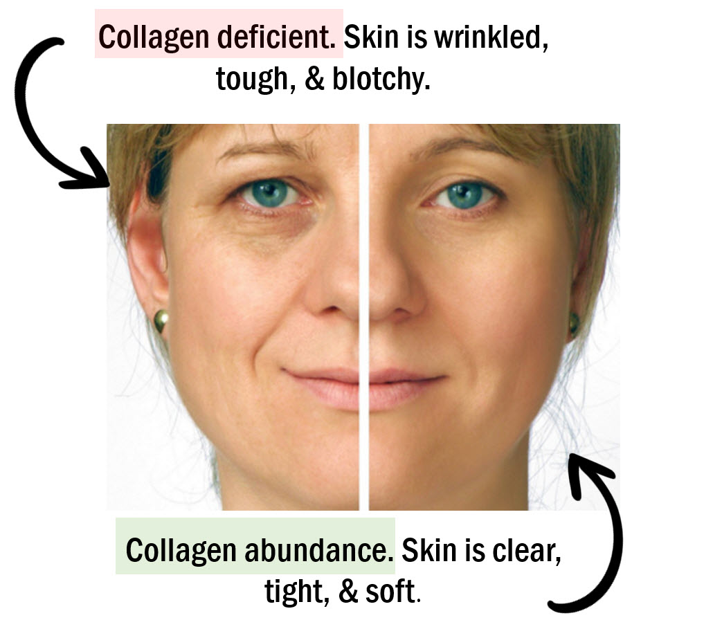 Low MSM / Sulfur also optimized collagen production