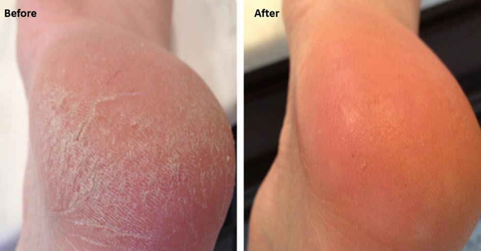 Dry, irritated skin and MSM