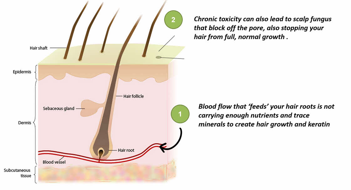 Hair Loss Caused by lack of MSM