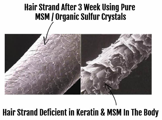 MSM supports hair follicles