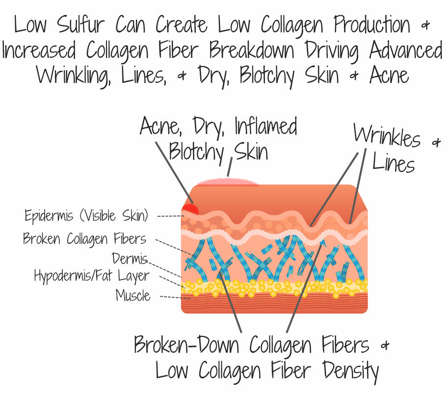 Low Sulfur Can Lead To Low Collagen And Skin Issues