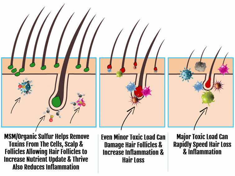 MSM and How It Protects Hair from toxicity and inflammation