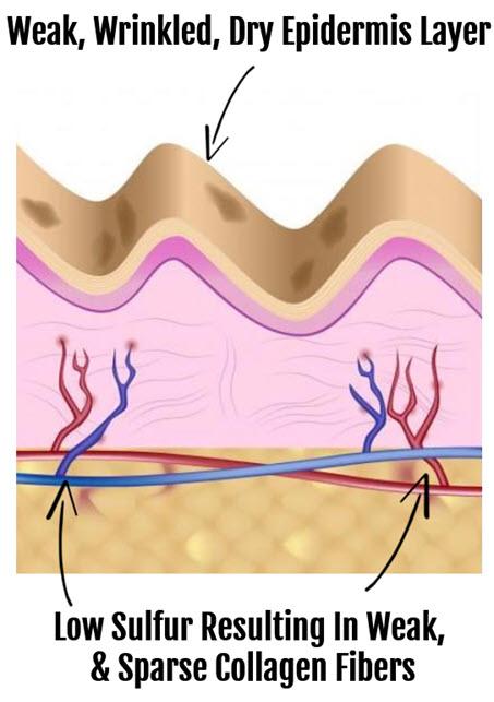 MSM Skin Benefits