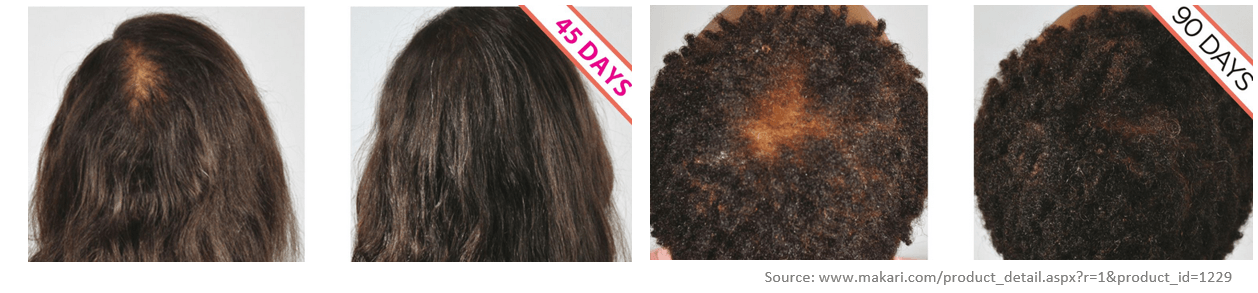 Hair regrowth effects from MSM use.
